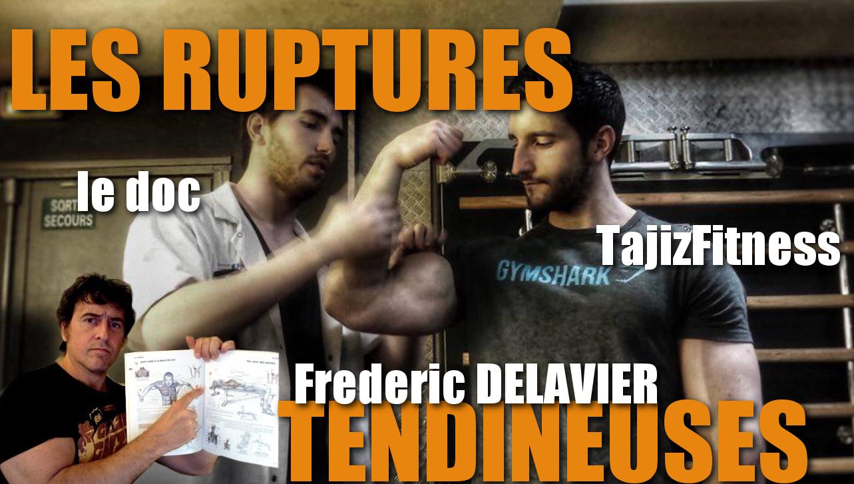 """Les ruptures Tendineuses par  Paul Matthieu  """"Le Doc"""" Chiaroni, TajizFitness et Frederic DELAVIER"""